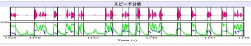 abe waveform